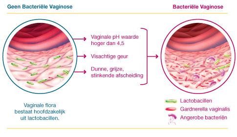 Bacteriële vaginose